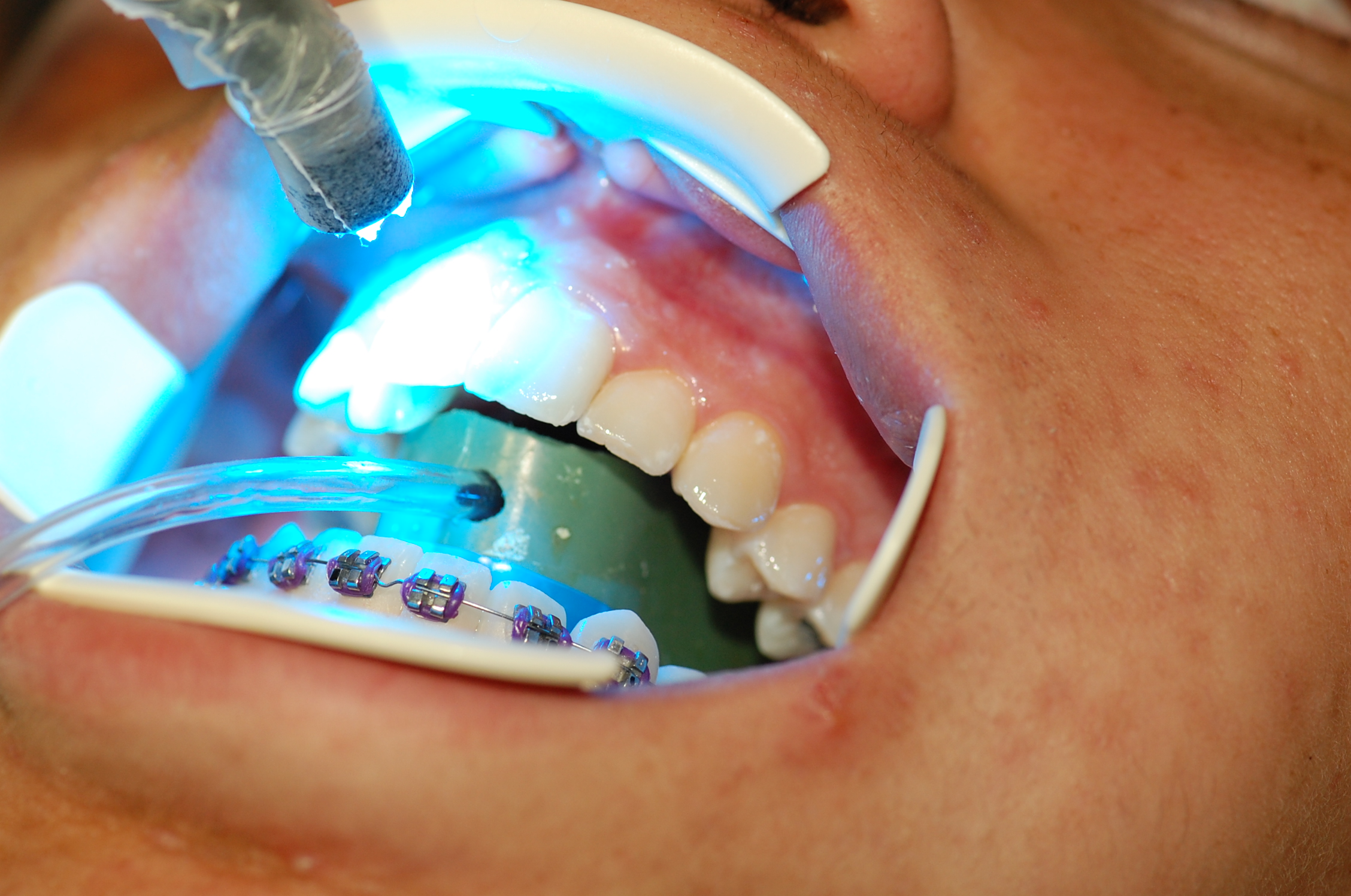 Redwood City Orthodontist Services