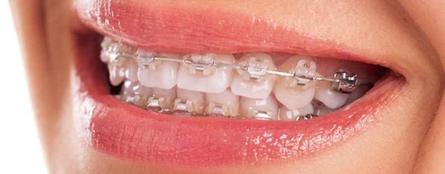 Redwood City Ceramic Braces