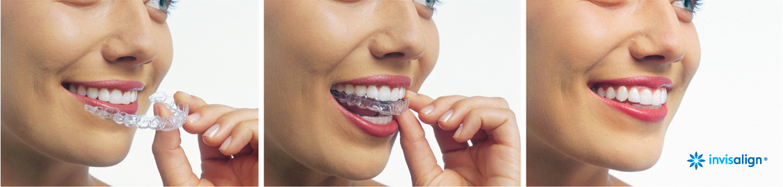 Redwood City Invisalign Services