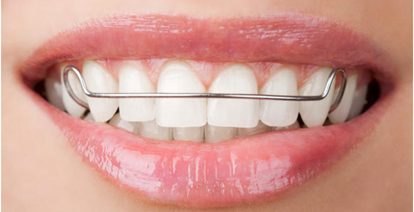 Dental Retainer Services In Redwood City 94062